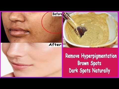 Simple and Easy Home Remedies to reduce  Hyperpigmentation, Brown Spots, Dark Spots or Black Patches