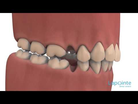 Tooth extraction consequences - Lapointe dental centres