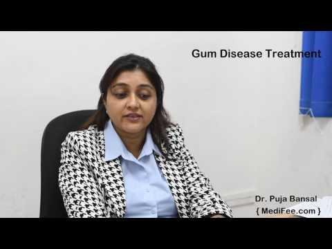Gum Disease - Causes, Symptoms and Treatment
