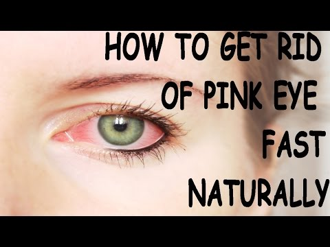 How to get Rid of Pink Eye Fast- Conjunctivitis Naturally. The Best Treatment!