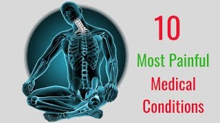10 Most Painful Medical Conditions