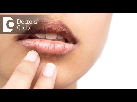 How to treat cracked corners of mouth? - Dr. Arundati Krishnaraj