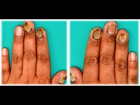 How to get rid of nail fungus fast and naturally