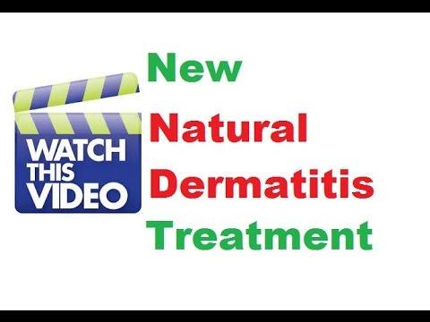 Stasis dermatitis treatment, Dermatology doctor, Dermatology specialist
