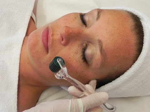 HOW TO INCREASE COLLAGEN AND REDUCE WRINKLES: banishacnescars.com