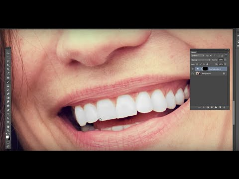 Photoshop Tutorial for Beginners - Whiten Teeth