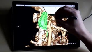 RadiAnt DICOM Viewer - Volume Rendering on Surface Pro 4