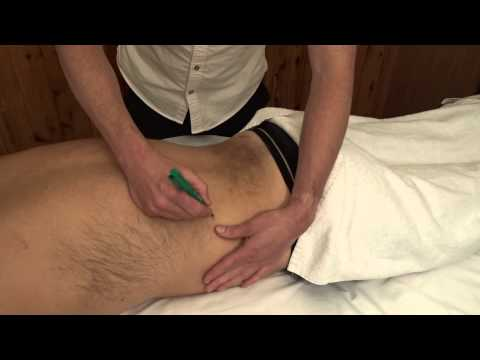 acupuncture pain relief treatment for lumber spasm at Pain Relief and Wellness Clinic