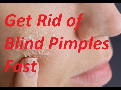 How to Get Rid of Blind Pimples Quickly and Naturally | Remove Blind Pimple