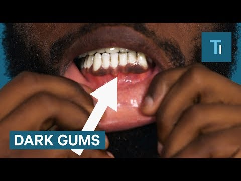 Why Some People Have Black Gums