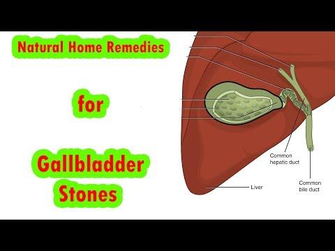 Gallbladder Stones Home Treatment | Natural Home Remedies for Gallbladder Stones