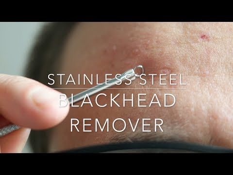 Stainless Steel Blackhead Acne Remover