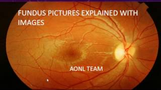 Fundus images explained by an ophthalmologist