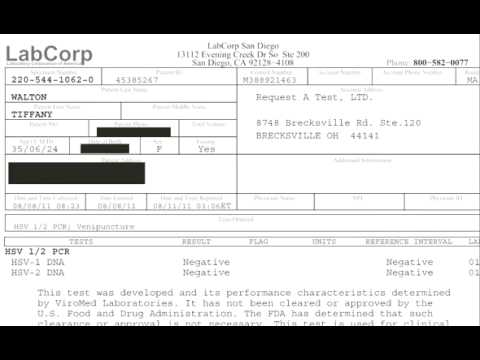 Tiffany's Testimonial   PCR Test Results Negative   herpes cure