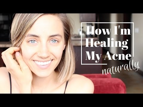 How I'm Healing My Acne Naturally