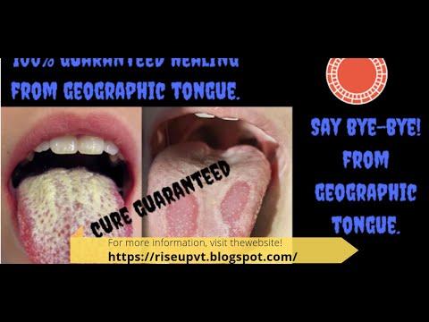 Geographic Tongue | 100% Guaranteed healing from Geographic tongue | No more Geographic tongue