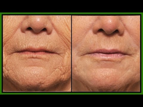 HOW TO GET RID OF DEEP MOUTH WRINKLES | HOW TO REDUCE AND REMOVE MOUTH WRINKLES | Khichi Beauty.