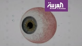 لبنان .. سبق طبي في علاج مرض يسبب العمى