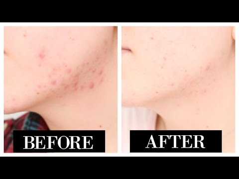 How I Clear Up My Acne In One Week!