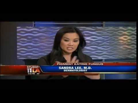 Tinea Versicolor - Dr. Sandra Lee treats White Spots on Fox Studio 11 LA