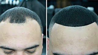 Download HOW TO COVER UP BALD SPOTS Video