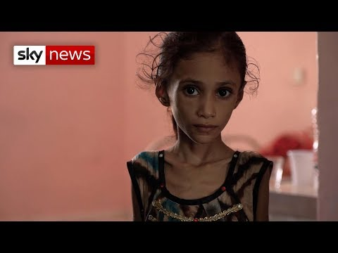 Xxx Mp4 Special Report Yemen 39 S Children Are Starving 3gp Sex