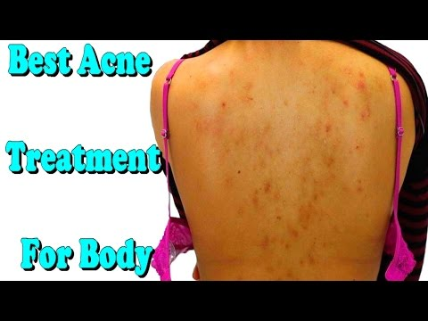 best acne treatment for body