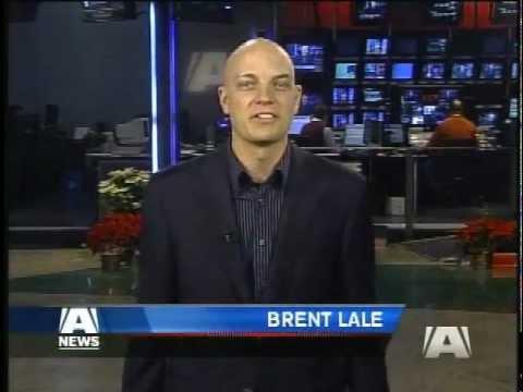Sports Reporter gets Alopecia Universalis