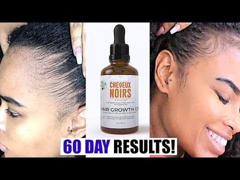 EASY TIP How to Grow Back Your EDGES & NATURAL HAIR in 2 Months!