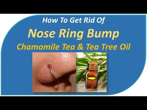 how to get rid of nose ring bump - Chamomile tea & Tea Tree Oil