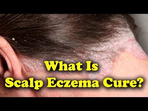 What Is Scalp Eczema Cure, Symptoms and Treatments