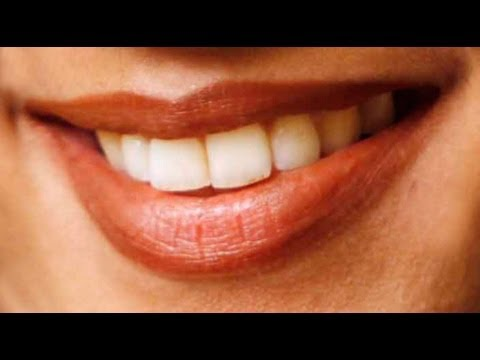 How to Whiten Your Teeth with a Home Remedy - Episode 6