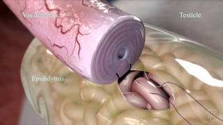 Epididymovasostomy - Mayo Clinic