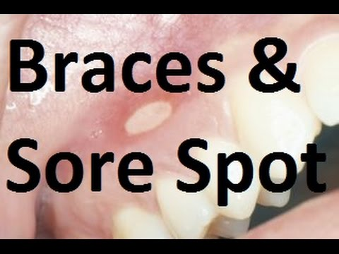The Brace has Made a Sore Spot in the Mouth-  What Should I Do? by Prof John Mew