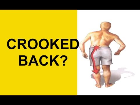 Herniated Disc Causing Crooked Back? Pinched Sciatic Nerve Pain Relief (Antalgic Lean)