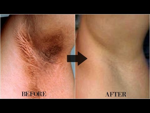 HOW TO LIGHTEN DARK UNDERARMS NATURALLY WITH FAST RESULT | OMABELLETV