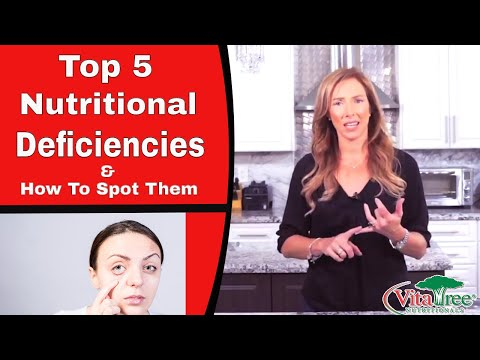 Top 5 Nutritional Deficiencies and How to Spot Them - VitaLife Show Episode 298