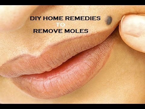 How to Remove Moles Without Pain Naturally - PAINLESS MOLE TREATMENT