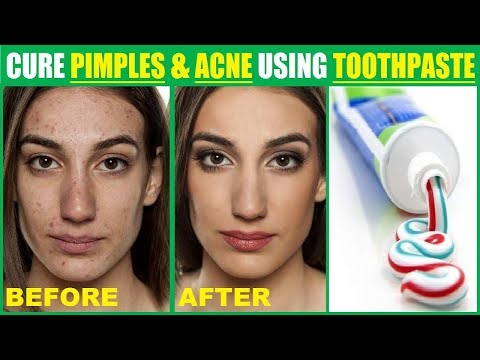 How to Apply Toothpaste to get Rid of Pimples, Acne and Dark Spots