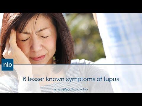6 Lesser Known Symptoms of Lupus