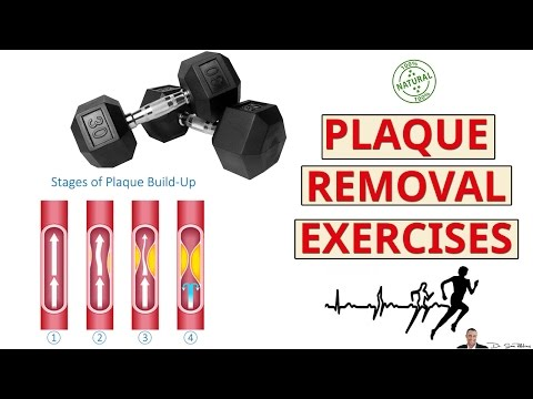 2 Best Exercises For Removing Calcium Deposits & Plaque Buildup From Your Arteries