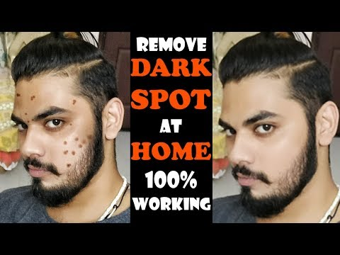 Remove Dark Spot at Home Naturally | Homemade Treatment For Dark Spot & Acne | Asad Ansari