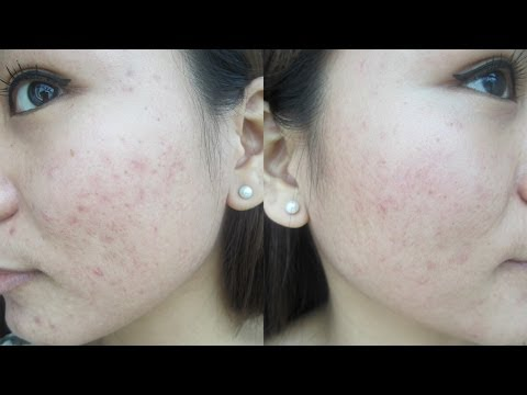 How to get rid of ACNE SCARS - PMD Review