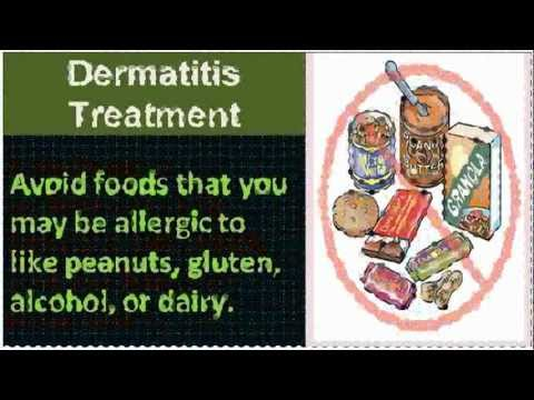 Watch hot tub dermatitis treatment - View Tips!