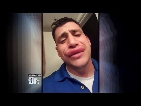 Wasp-Stung Lips?