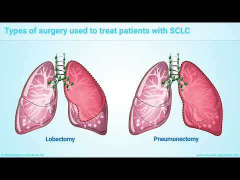 Treatment and Management of Small Cell Lung Cancer (SCLC)