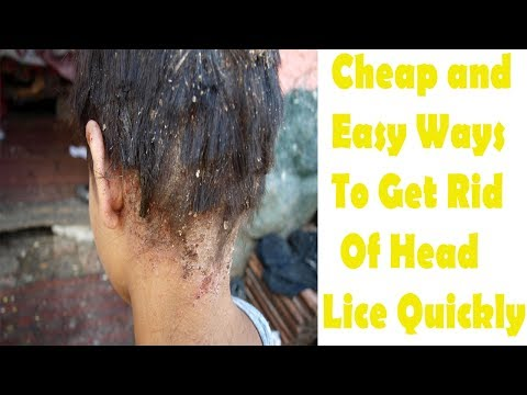 Cheap and Easy Ways to get rid of Head Lice Quickly