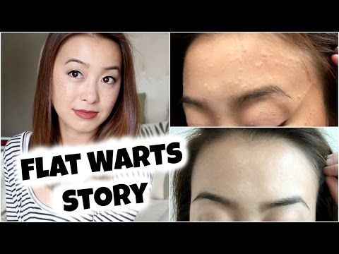 My Flat Warts Story + Spontaneous Regression (With Pictures)